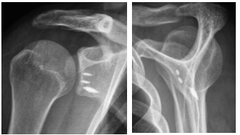 http://www.dr-touchard.fr/wp-content/uploads/2016/11/reparation-ligamentaire.png