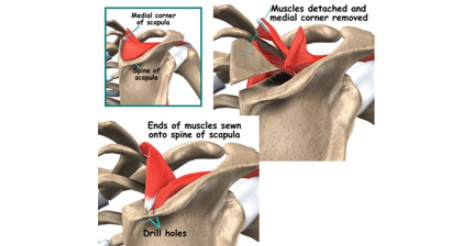 http://www.dr-touchard.fr/wp-content/uploads/2016/11/snapping-scapula.png